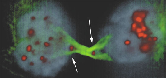 Figure 2 – Cancer cells with anaphase chromatin bridge and arrows pointing to the two centromeres that lead to a tug-of-war during mitosis interfering with cytokinesis.