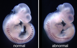 Figure 2. Even spacing of the muscle precursors is altered in embryos when somite patterning is disrupted (right).